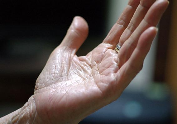 手や腕のしびれイメージ図